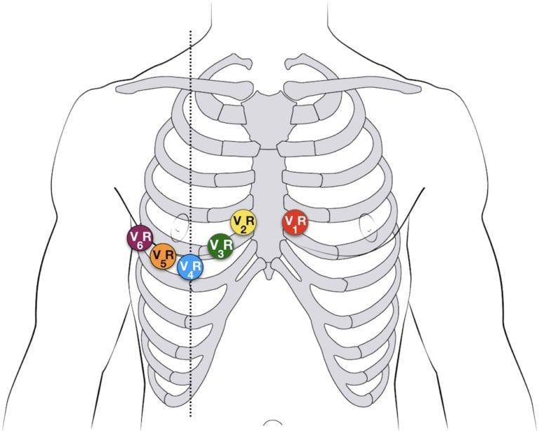 Картинки наложение грудных электродов